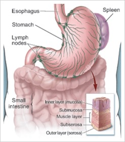about gastric cancer