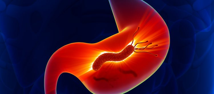 helico bacter pylori stomach inflammation
